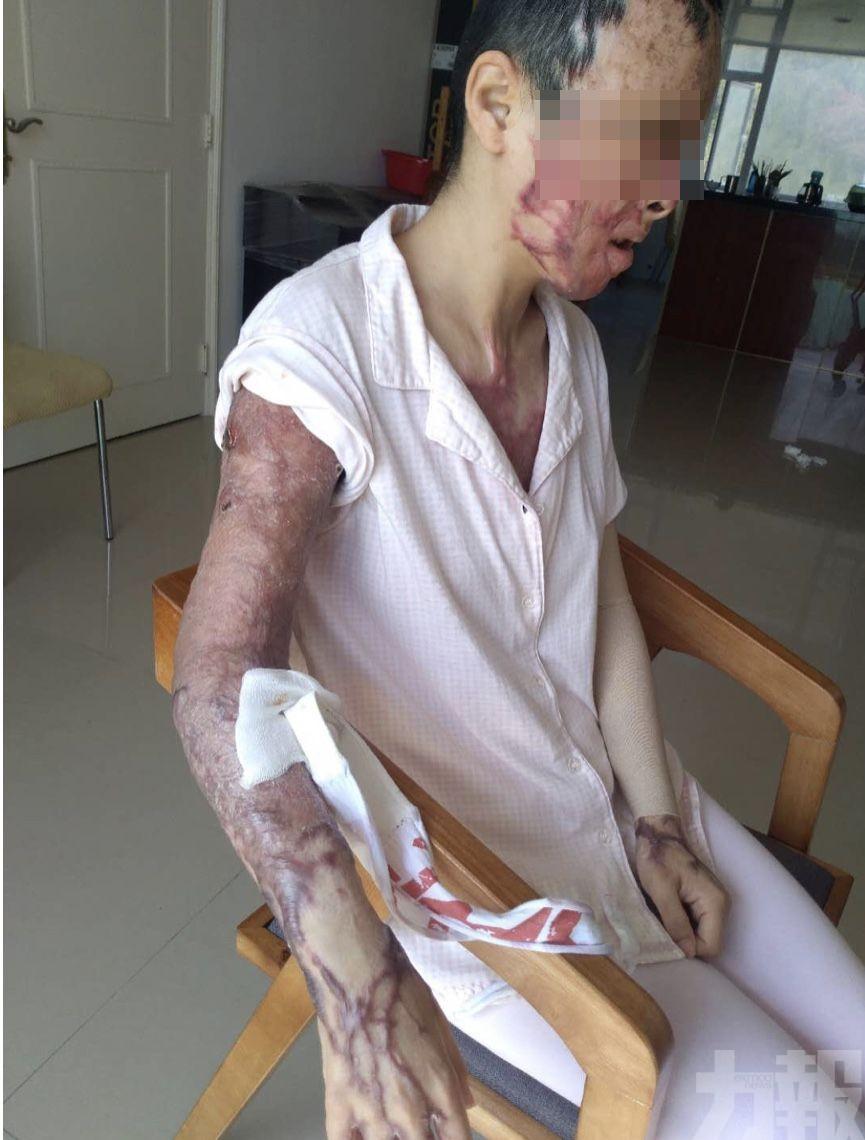 衛生局為漒水家暴案女傷者採取積極治療