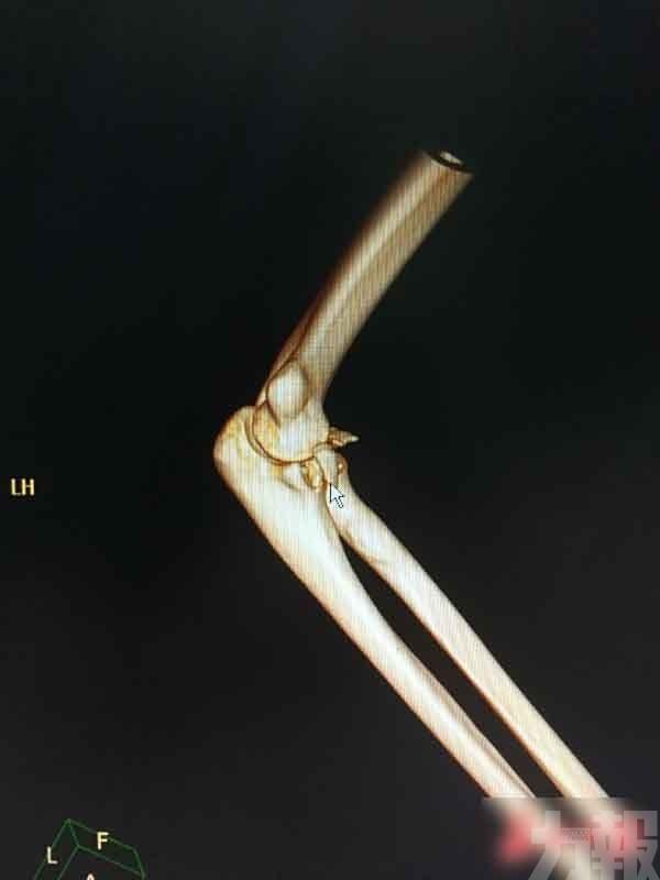 手臂骨折兼脫位需做手術