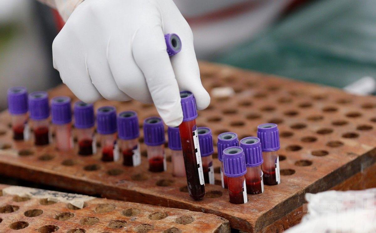 日研究團隊宣布成功研發人造血