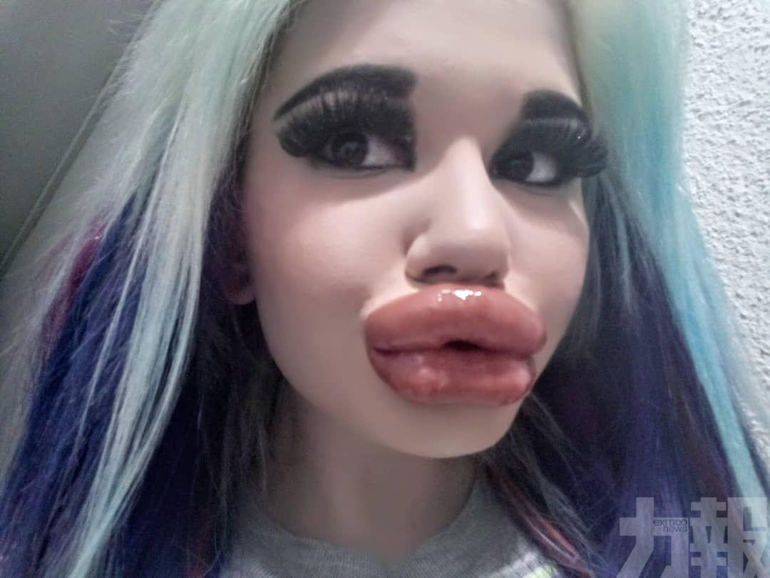 有片!兩年豐唇20次 女網紅變歐陽鋒