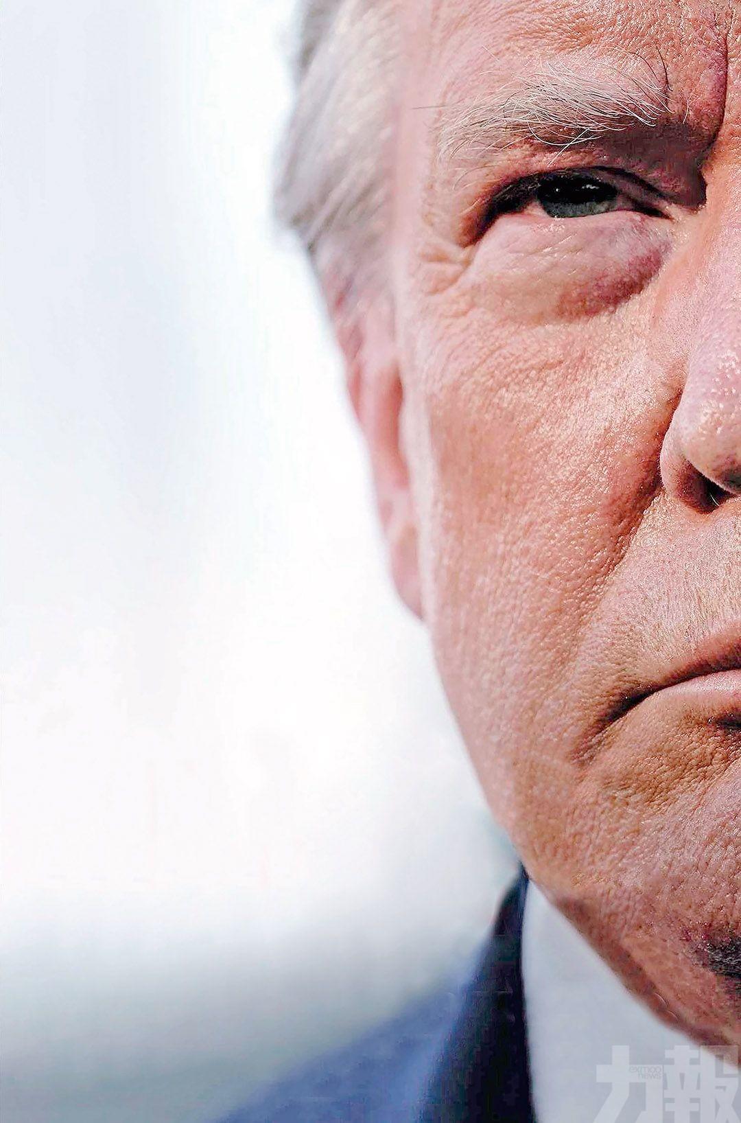 淡化疫情「不想美國人恐慌」