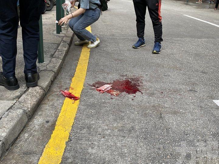 阿婆過馬路疑被撞 現場留有大量血跡