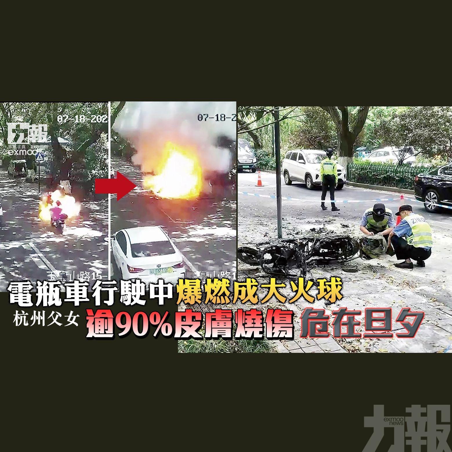 杭州父女逾90%皮膚燒傷危在旦夕