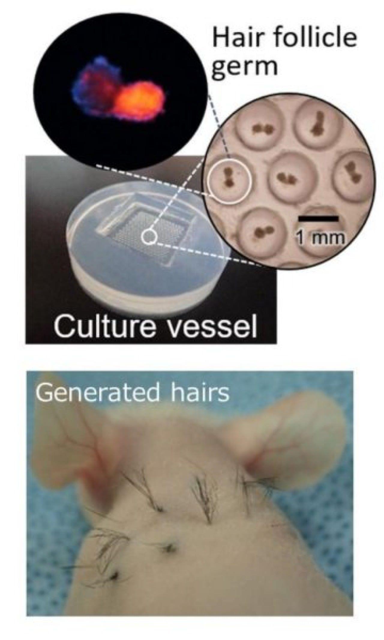 日團隊發現治療禿頭新方法