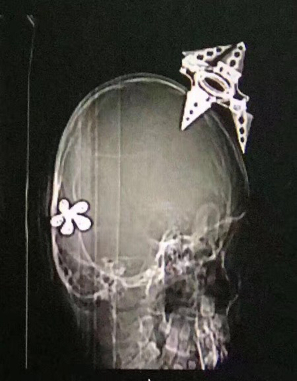 女童課室內遭飛鏢插穿頭骨