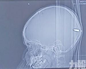 竟發現腦內有子彈