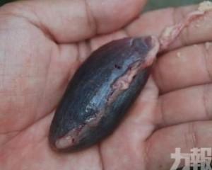 雲浮6旬老伯嚴重中毒多器官受損險喪命