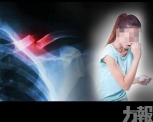浙江20歲女大力咳3次後骨折
