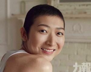 池江:沒有頭髮並不是可恥