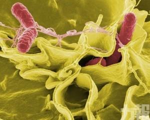 美國23州爆發沙門氏菌疫情