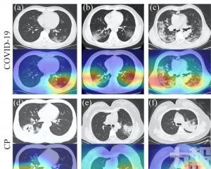 澳大研發智能系統區分新冠肺炎