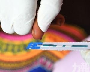聯合國指全球去年約77萬人死於HIV